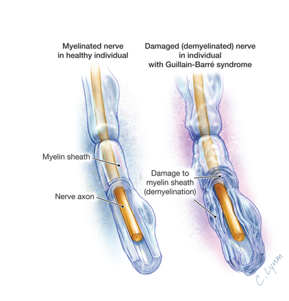 Guillain-Barre Syndrome by Lynm, JAMA 2011